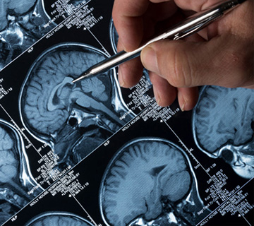 Brain scan images with doctor pointing pen at image